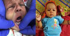 7 दांतों के साथ पैदा हुआ यह दुनिया का पहला अदभुत बच्चा, देखिए तस्वीरें | Punjab Kesari