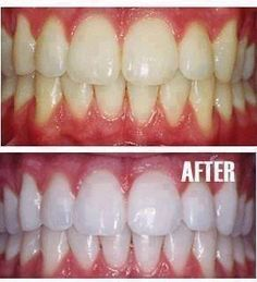 How to make your teeth Sno-white
