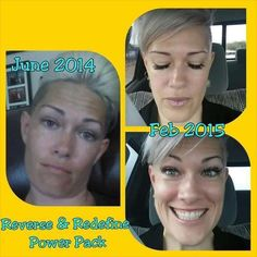 """Holy awesome results!  Check out my girlfriend and fellow Consultant Tait Schneider's before and after using the R+F Reverse Regimen and Power Pack.   She said, """"I had no idea how dark and discolored my skin was... I was starting to look like I had a 5:00 shadow...I no longer need to wear foundation!! Wooohooo!""""  Are you ready to have the best skin of your life? Let's chat."""