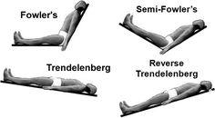Trendelenburg position...