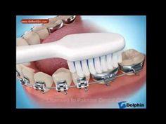 Brushing with dental braces