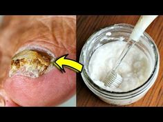 Nail fungus is a common condition that begins as a white or yellow spot under the tip of your fingernail or toenail. In this video, I will tell you how to ge. Toenail Fungus Treatment, Nail Treatment, White Spots On Toenails, White Toenail Fungus, Football Food, Football Recipes, Fungal Infection