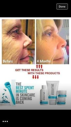 Want these results? She used Rodan + Fields Redefine Regimen and Amp MD Roller with Night Renewing Serum (Redefine Amp It Up Special). Visible results!!