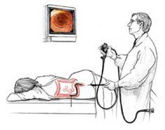 9 best colonoscopia images health, medicine, cabocomo é o exame de colonoscopia