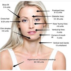 Laser hair removal is epilation by laser or with making use of an unique light. Besides the body, particular kinds of laser hair elimination might securely be utilized to lower facial hair as well. Botox Injection Sites, Botox Injections, Botox Fillers, Dermal Fillers, Face Fillers, Facial Aesthetics, Medical Aesthetics, Plastic Surgery Procedures, Brow Lift