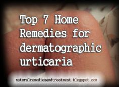 Top 7 Home Remedies for dermatographic urticaria Natural Remedies For Hives, Hives Remedies, Itching Remedies, Rashes Remedies, Cold Home Remedies, Natural Health Remedies, Heat Rash Treatment, Home Treatment, Heat Rash On Back
