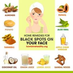 How to get rid of black spots on face infographic