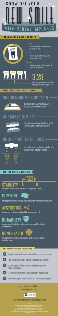 Dental implants serve a number of purposes. These devices can provide an anchor for fixed bridges where teeth are missing. Discover other dental implant functions by clicking over to this infographic from a dentist located in Greenwood. Dental Health, Oral Health, Dental Care, Dental Hygiene School, Dental Procedures, Dental Posters, Dental Facts, Dental Insurance, Cosmetic Dentistry