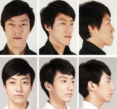 Korean man face plastic surgery – chin, lips and nose – before and after