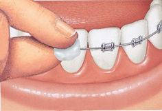 Cure Your Orthodontic Pain