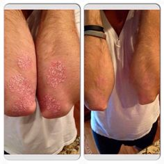 A Rodan and Fields consultant, Katie Kingsley Nilsson's husband Fred, suffers from psoriasis on his knees and elbows. These are his results using SOOTHE Step 2 and Step 3 twice a day for 3 weeks. SOOTHE has helped so many suffering from psoriasis, eczema and rosacea. Message me if you know someone who might be interested in trying!