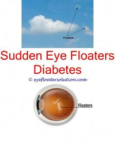 1744 Best Eye Floaters Causes Images Eyes Problems