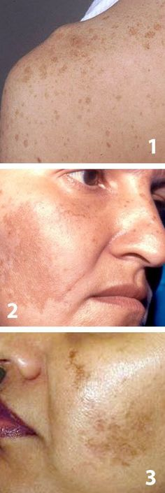 enlever naturellement taches brunes sur le visage