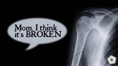 One of the common challenges faced by parents is the fear that their child will at some time sustain a broken bone. The medial term for broken bone is. Things To Think About, Mom, Health, Face, Salud, The Face, Faces, Mothers