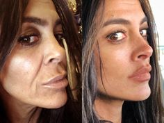 Mini Face Lift is a facelift procedure that minimizes incisions, scarring, and recovery under local anesthesia with no general anesthesia needed. Cheek Implants, Lip Augmentation, Cheek Fillers, Dermal Fillers, Jaw Line, Mini Face Lift, Facelift Before And After, Botox Brow Lift, Botox Lips