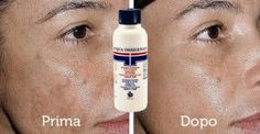 acqua ossigenata macchie pelle  Per sbiancare la pelle ed equilibrare le tonalità, imbevi un pezzo di cotone con acqua ossigenata. Applica direttamente sulla macchia dando dei piccoli colpi. Tre minuti