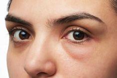 Bolsas en los ojos: Descubre cómo eliminarlas y deshazte de esos signos de cansancio
