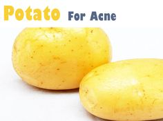 Potatoes for Natural Acne Cure - Never heard of this before but worth a try! http://track.markethealth.com/SH31K