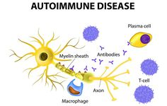 Autoimmune disease http://www.prevention.com/health/6-scary-reasons-your-eyes-are-acting-weird/slide/6