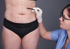 A fleur-de-lis abdominoplasty is a procedure that is slowly gaining popularity in the cosmetic surgery world. Tummy tuck is popular in women. Mini Tummy Tuck, Tummy Tucks, Tummy Tuck Before After, Tummy Tuck Tattoo, Types Of Surgery, Face Lines, Face Contouring, Plastic Surgery