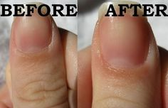 Quit cutting your cuticles! Try this treatment today www.facebook.com/loveswish