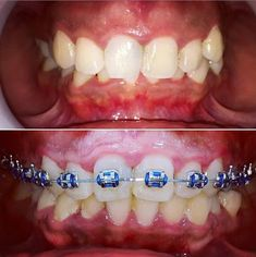 7 Best Active Aligners Results Clear Aligners Images Clear