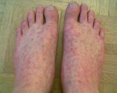 Rocky Mountain Spotted Fever – Causes, Symptoms, Diagnosis, Treatment and Ongoing care - Health tips Rashes Remedies, Herbal Remedies, Natural Remedies, Heat Rash Causes, Low White Blood Cells, Rocky Mountain Spotted Fever, Nursing Diagnosis, Body Hacks, Lyme Disease