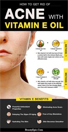 How to Get Rid of Acne with Vitamin E oil? Vitamin E maintains skin health by neutralizing free radicals and by being absorbed into the skin. Here we discuss how to use vitamin E oil for acne. Acne Skin, Oily Skin, Sensitive Skin, Skin Care Regimen, Skin Care Tips, Natural Acne Remedies, Pimples Remedies, Natural Acne Treatment, Acne Treatments