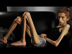 Anorexia Nervosa Anorexia Nervosa is a type of eating disorder that is characterized by excessive exercising and limiting food to the point of starvation. While an obsession with weight and food is a factor in this disorder, the underlying cause of the disorder often relates to a person's...