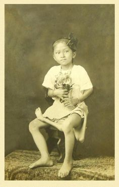 """""""Maxine-Mina"""" was born in the Philippines around 1896. She claimed to have been born with total control of all four legs, but the extra pair became atrophied through years of disuse. She was exhibited in Atlantic City, New Jersey, in 1917 and according to Rear Admiral G. W. Baird, who saw her on exhibition, she still had some control of her extra legs."""