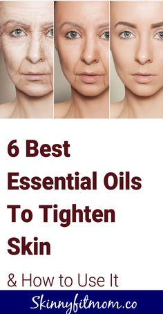 Get Rid of Saggy Skin with the Top Best Essential Oils to Ti.- Get Rid of Saggy Skin with the Top Best Essential Oils to Tighten Skin Don't let saggy skin stop you from being beautiful. Learn now how to use essential oils to tighten lose skin! Essential Oils For Face, Cystic Acne Treatment, Brown Spots On Skin, Gewichtsverlust Motivation, Face Wrinkles, Sagging Skin, Saggy Eyes, Droopy Eyes, Face Skin