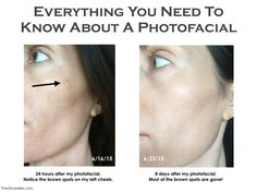 Everything You Need To Know About A Photofacial. | Read the complete review on TheGinaMiller.com