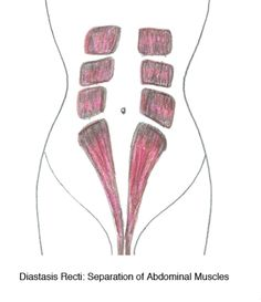 Exercises for diastasis recti