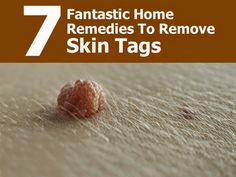 How To Safely Remove Skin Tags With 7 Home Remedies