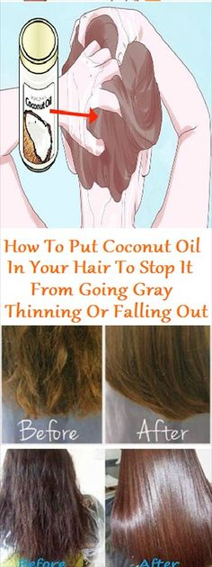 Health & Beauty Frizzy Hair Styles, Frizzy Hair Fix, Haircuts For Frizzy Hair, Frizzy Hair Remedies, Hair Loss Remedies, Coconut Oil For Hair, Healthy Hair Tips, Natural Hair Care, Natural Hair Styles