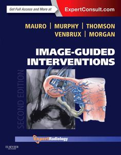 """NEW: """"Image-Guided Interventions, 2nd Edition,"""" new chapters covering ablation involving microwave and irreversible electroporation; aortic endografts with fenestrated grafts and branch fenestrations; thoracic endografting (TEVAR); catheter-based cancer therapies involving drug-eluting beads; sacroiliac joint injections; bipedal lymphangiography; pediatric gastrostomy and gastrojejunostomy; and peripartum hemorrhage. #radiology"""