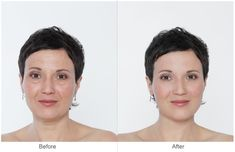 This informative article will tell you all that you need to know about the Juvederm Hyaluronic acid treatment for reducing facial wrinkles and tiredness. Beauty Skin, Hair Beauty, Neck Wrinkles, Under Eye Bags, Puffy Eyes, Look Younger, Eyeshadow Looks, Good Skin, Beauty Hacks