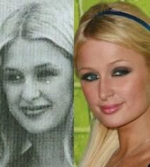 Paris Hilton before and after plastic surgery Paris Hilton, Types Of Plastic Surgery, Plastic Surgery Gone Wrong, Celebrities Before And After, Celebrities Then And Now, Funny Celebrity Pics, Celebrity Pictures, Feeling Ugly, Celebrity Plastic Surgery