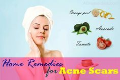 34 best natural home remedies for acne scars on face and body
