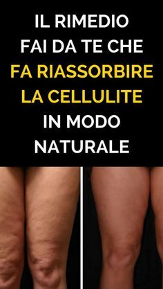 The Do It Yourself Remedy That Makes Cellulite Reabsorbed .- The Do It Yourself Remedy That Makes Cellulite Reabsorb naturally .