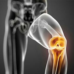 جلوگیری از درد زانو http://www.drarjang.ir/articles-orthopedic/knee-aa