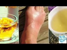 Prevent Arthritis, Uric Acid, Gout, Natural Treatments, Health Problems, Healthy Lifestyle, Alcoholic Drinks, Health Fitness, Stretch Routine