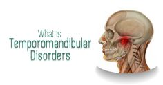 #TemporomandibularDisorders (TMD) are a complex and poorly understood set of conditions characterized by pain in the jaw joint and/or surrounding tissues and limitation in jaw movements. These problems can affect your ability to chew and swallow foods and limit how wide you can open your mouth. Swallow Food, Dentist In, Dental Implants, Foods, Food Food, Food Items