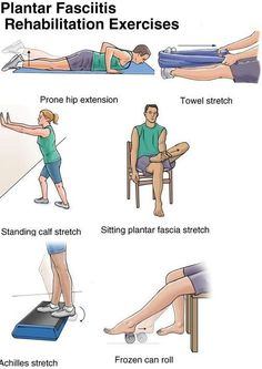 PLANTAR FASCIITIS -PHYSIOTHERAPY