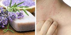 Visto que as peles delicadas ou com dermatite não costumam tolerar bem muitos dos compostos químicos...