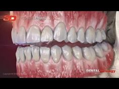 Dentalstrategy - 3D Dental Animation - YouTube