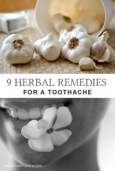 Research enough and you'll find a home remedy for every ailment. Toothaches are no exception. These herbal remedies for a toothache are natural and safe! Holistic Remedies, Homeopathic Remedies, Natural Health Remedies, Natural Cures, Natural Healing, Natural Foods, Au Natural, Natural Living, Natural Medicine