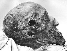 The cranium of the Swedish king Charles XII from an autopsy in also known as Carolus Rex, who died from a sustained headshot in 1718 Battle Of Poltava, Post Mortem, Memento Mori, King Charles, Archaeology, Creepy, Old Things, Temples, Retro