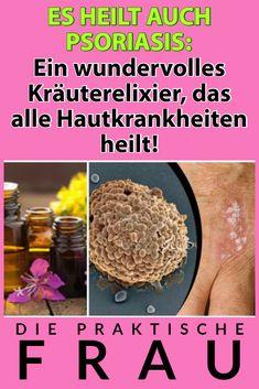 Dies ist eines der effektivsten Rezepte und kann bei jeder Art von Hautkrankheit eingenommen werden! Kraut, Food, Red Blood Cells, Gout, Skin Rash, Healing, Feel Better, Home Remedies, Essen