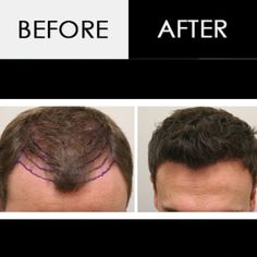 Hair Transplantation is the permanent solution Hair Transplant In India, Hair Transplant Surgery, Fue Hair Transplant, Hair Fall Solution, Environmental Factors, Bald Heads, Hair Loss Remedies, About Hair, Fall Hair
